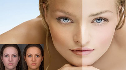 How to improve your skin tone