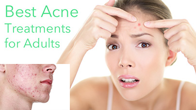 Adult acne and ways of treating it