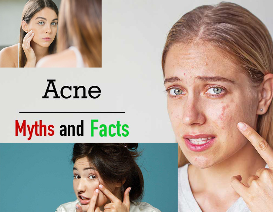 Common myths of acne debunked