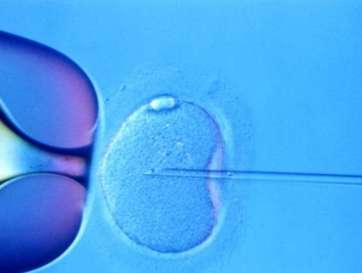 IVF in Malaysia: What you should know